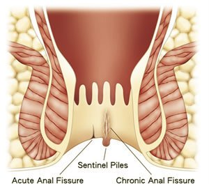 Hemorrhoid Or Anal Fissure?